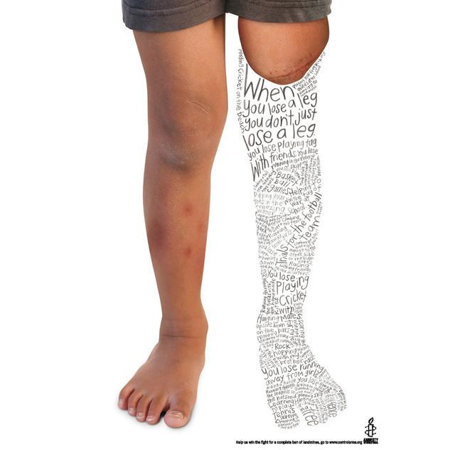 Publicidad Impresa - Amnistía Internacional: la pierna
